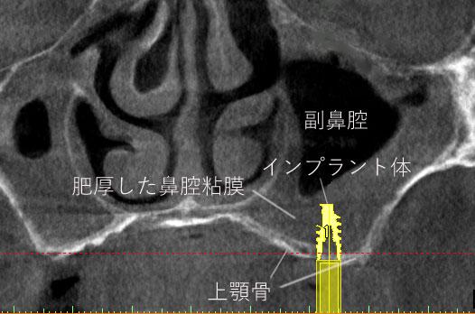 薄い 上顎骨 では インプラント は 副鼻腔 に貫通