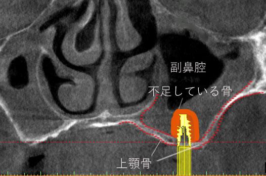 薄い 上顎骨 でインプラント 治療に不足している 骨