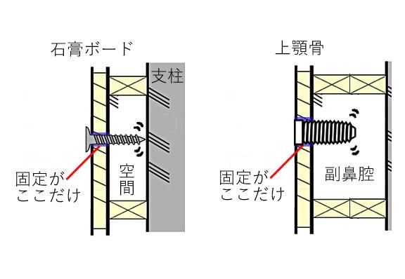 石膏ボードと 薄い 上顎骨 の インプラント 埋入の比較