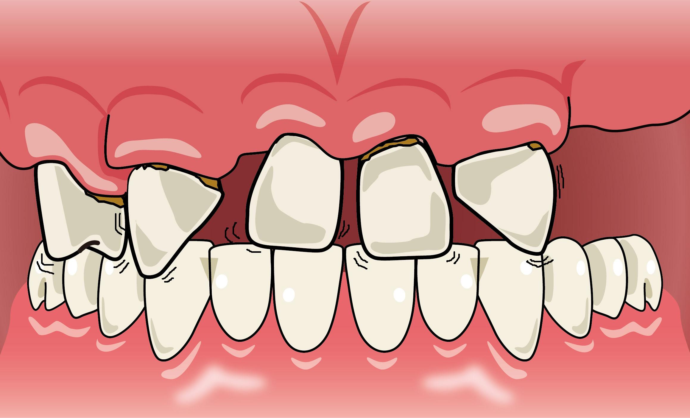歯がぐらつく | 入れ歯が合わない | 噛むと痛い