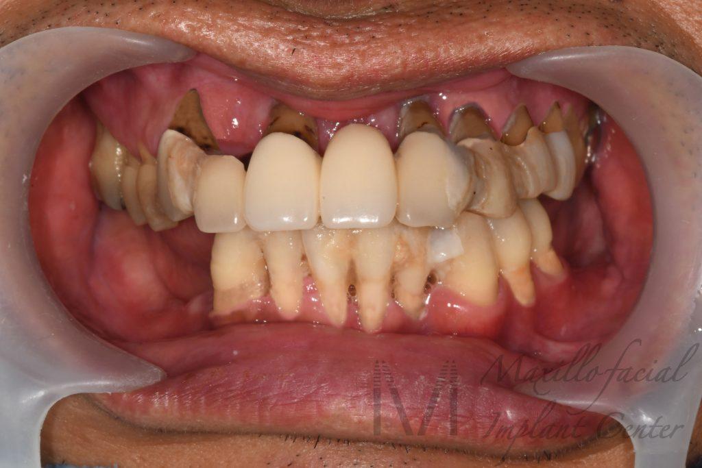 歯がぐらつく | 入れ歯が合わない | 噛むと痛い 口腔内写真