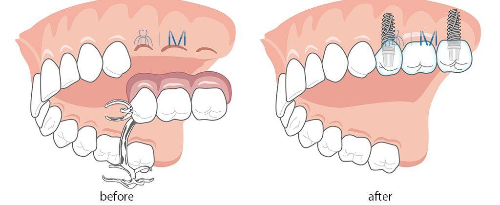 3本分の臼歯部の 入れ歯 を インプラント に変える