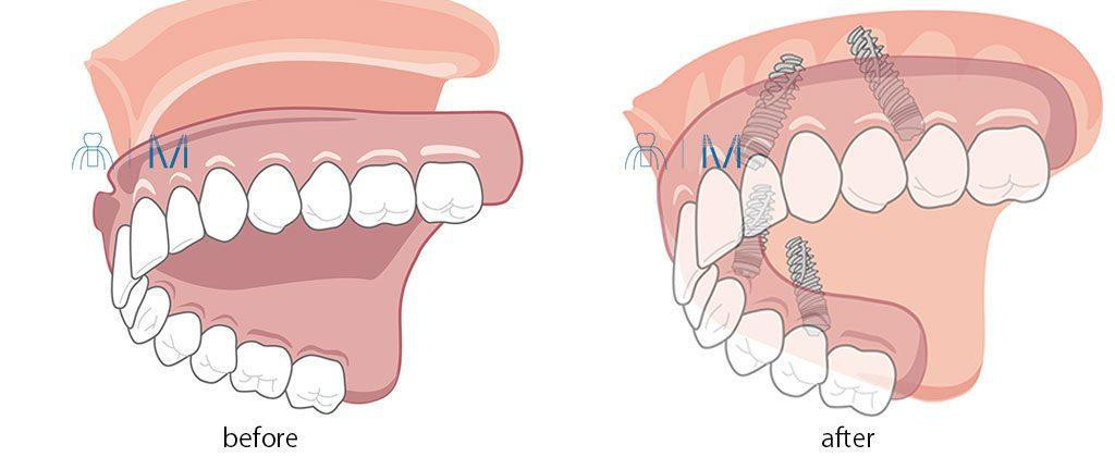 総義歯 を All-on-4 インプラント に変える