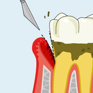 歯周ポケット掻爬手術