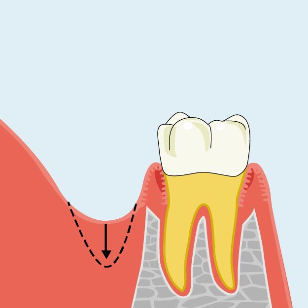 歯肉歯槽粘膜形成術 口腔前庭拡張術