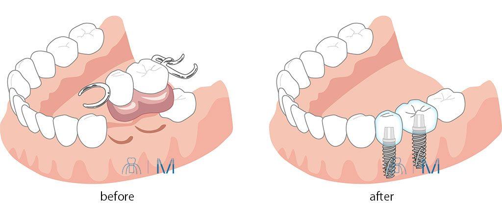 2本分の部分 入れ歯 を インプラント  に変える