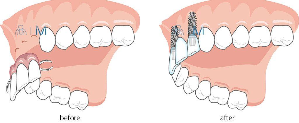 3本分の前歯部の 入れ歯 を インプラント に変える
