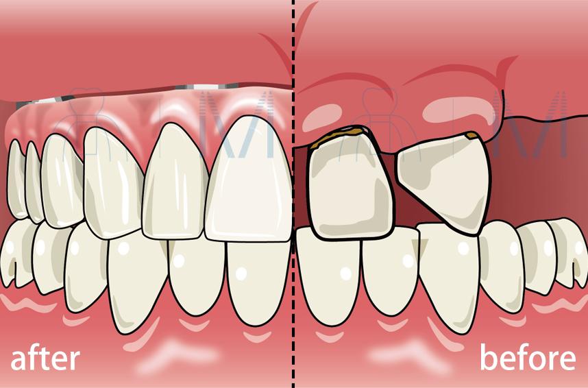 たった1日で歯が入る