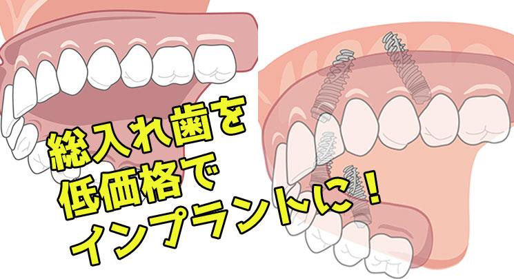入れ歯 低価格 インプラント