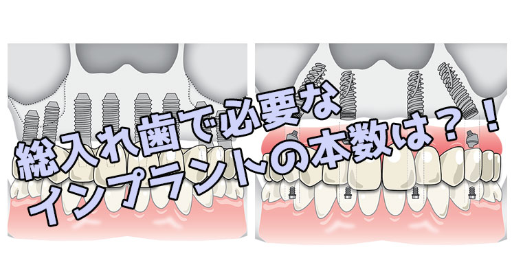 総入れ歯 インプラント 本数