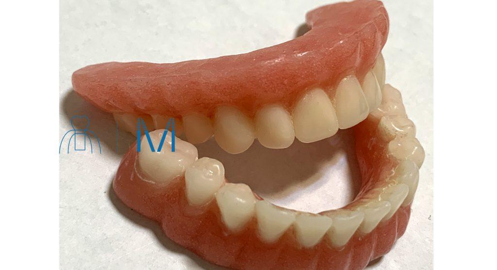 All-on-4 仮歯 プロビジョナルレストレーション