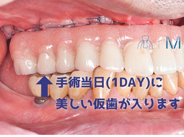 オールオンフォー 仮歯 プロビ