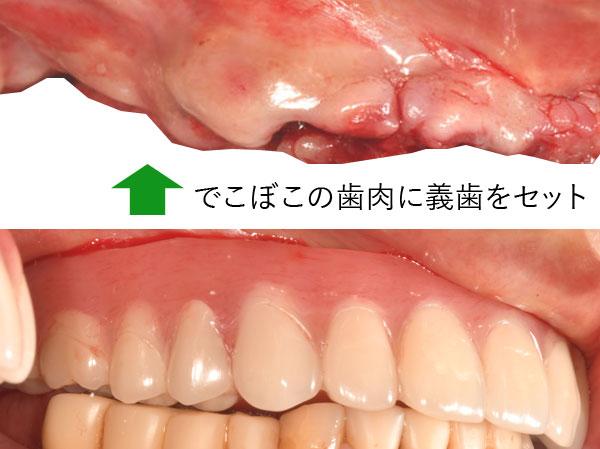 抜歯窩 歯肉と骨は変化する