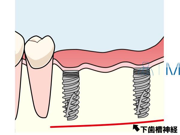インプラントと下歯槽神経