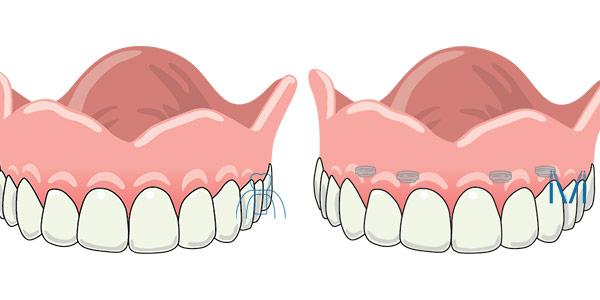 総義歯とオーバーデンチャー