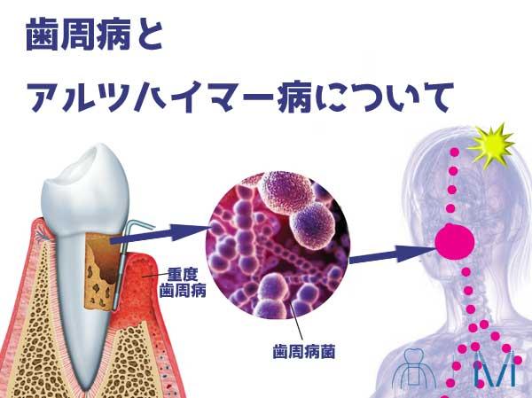 歯周病とアルツハイマー