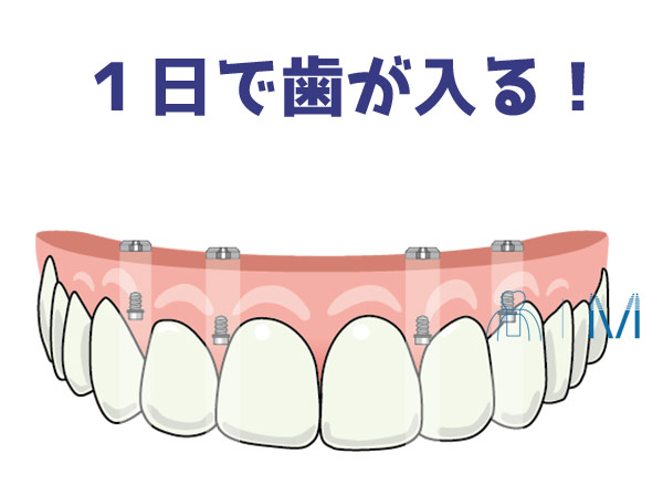 オールオンフォー 1日で歯が入る