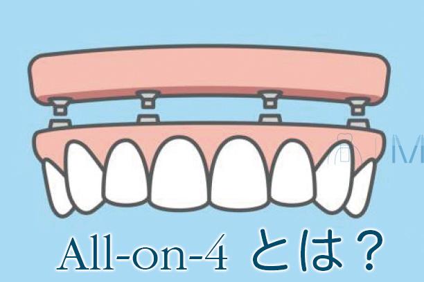 All-on-4とは 定義 オールオンフォー