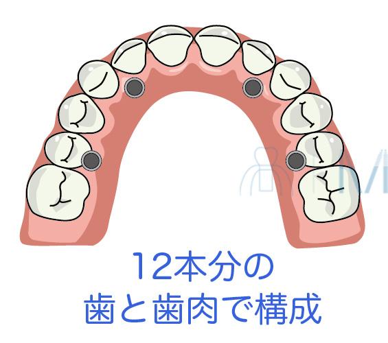 オールオンフォーは12本分の歯と歯肉から