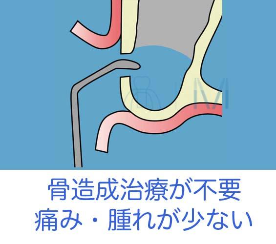 骨造成は痛い・腫れ