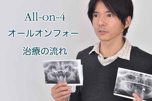 All-on-4 オールオンフォー 治療の流れ