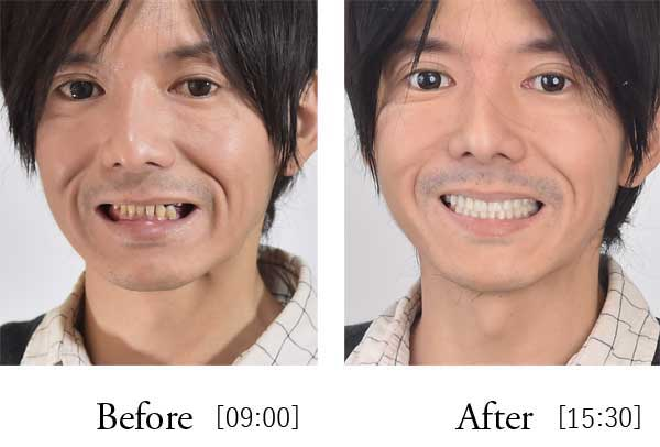 All-on-4 before after