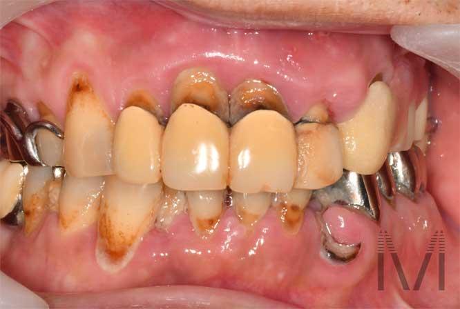 歯がぐらぐら 虫歯