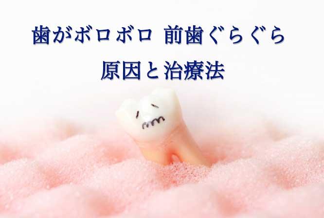 歯がボロボロ 前歯ぐらぐら 治療法