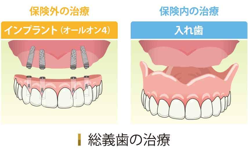 総義歯の治療(オールオン4 入れ歯)